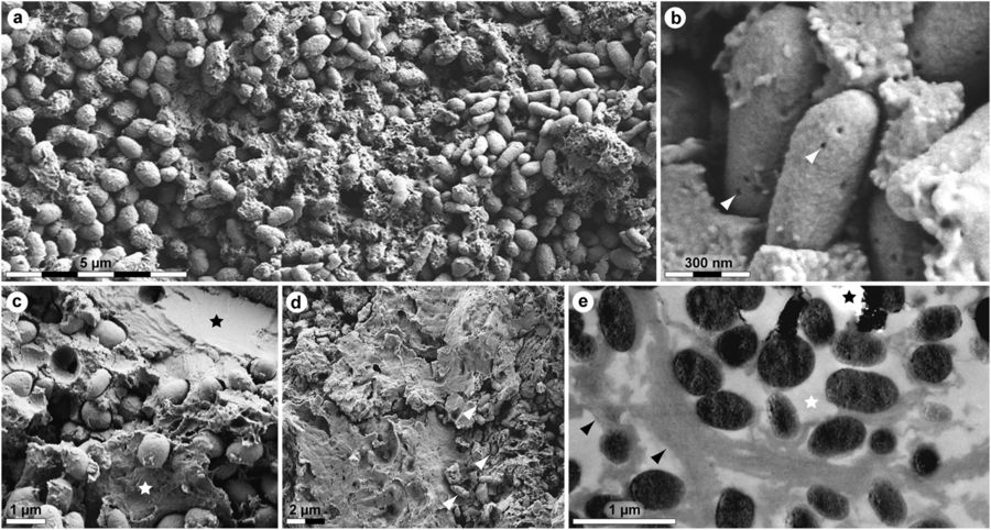 Ultrastructure of MHM-K2 soft tissues. (a) FEG-SEM micrograph of demineralised tissue showing microbodies and adhering matrix. (b) At higher magnification, the microbodies possess a rough surface texture and scattered pits (arrowheads). (c) FEG-SEM micrograph of untreated soft tissue depicting microbodies embedded in a mineral precipitate (black star) and sheet-like matter (white star). (d) Microbodies (arrowheads) in a sheet-like substrate. (e) TEM micrograph of electron-dense microbodies and fibrous matrix (black arrowheads) after demineralisation. White star indicates epoxy resin, whereas black star marks an artificial rupture.